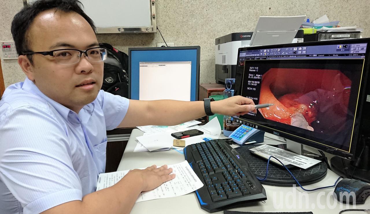 惠來醫療社團法人宏仁醫院胃腸肝膽科醫師江明師,解說大腸癌的種類和治療方式。記者凌筠婷/攝影